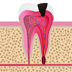 Entzündeter Zahn