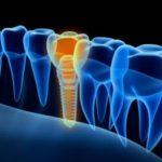 Digitale Aufnahme eines Zahnimplantats