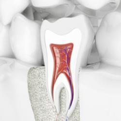 Grafik einer Zahnwurzel