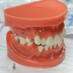 Mini-Implantate in Gebissmodell