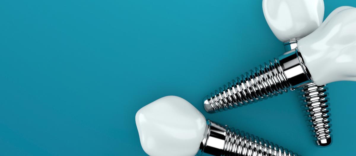 Zahnimplantate auf Hintergrund