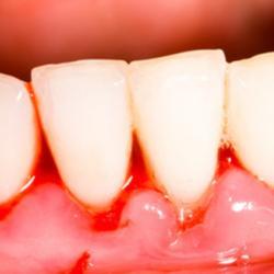 Zahnfleischbluten Zahnmetalle