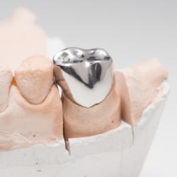 Zahnkrone aus Metall auf Modell