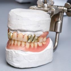 Modell Gebiss mit Zahnersatz aus Gold