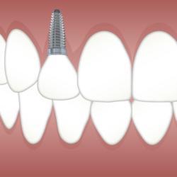 Grafische Darstellung eines Zahnimplantats im Oberkiefer