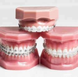 Modelle mit verschiedenen Arten von Zahnspangen