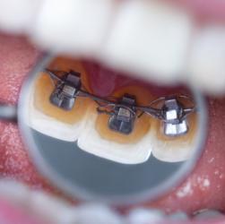 Nachaufnahme Brackets auf Innenseite der Zähne