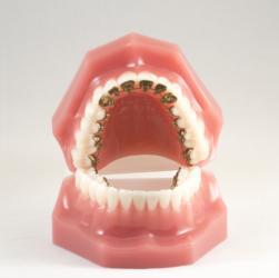 Brackets an der Zahninnenseite