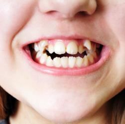 Mädchen mit schiefen Zähnen