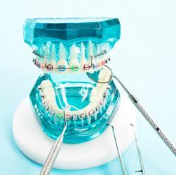 Zahnspangenmodell mit Behandlungsinstrumenten