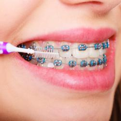 Reinigung der Zähne mit einer kleinen Bürste