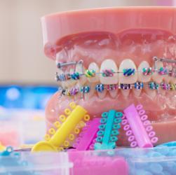 Modell einer festen Zahnspange mit bunten Gummibändern