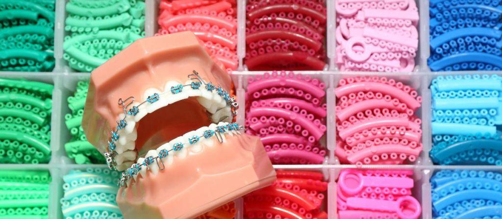 Modell einer Zahnspange mit Bändern in vielen Farben