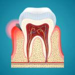 Grafik Zahnfleischentzündung Zahnbettentzündung Parodontitis