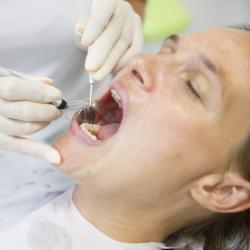Parodontitis Diagnose Zahnfleischtaschen messen