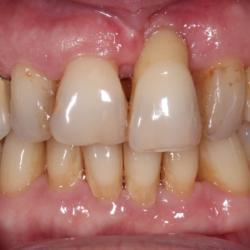 Parodontose Zahnfleischrückgang Knochenabbau