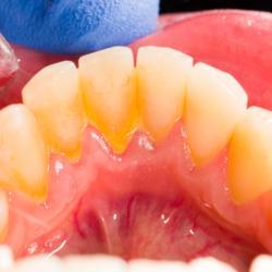 Gelbliche Plaque an der Zahninnenseite