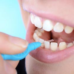 Zahnzwischenraumreinigung mit Interdentalbürste