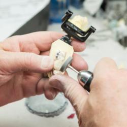 Anfertugung eines Abdrucks für Implantate
