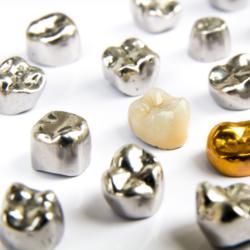Zahnkronen aus Metall, Gold und Keramik