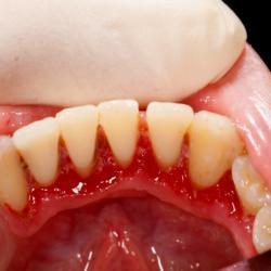 Parodontitis Behandlung Zahnfleischrückgang