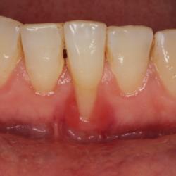 Parodontitis Zahnfleischrückgang freiliegender Zahnhals