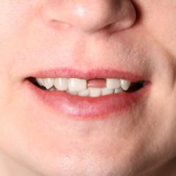 Parodontose Zahn verloren