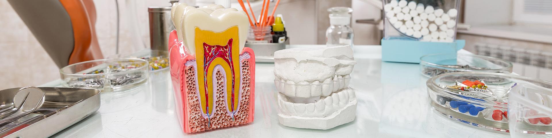 Modell Zahn und Modell Gebiss auf Schreibtisch in Zahnarztpraxis