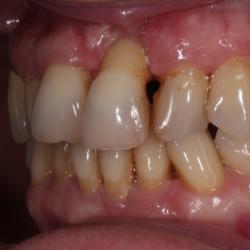 Parodontitis freiliegender Zahnhals