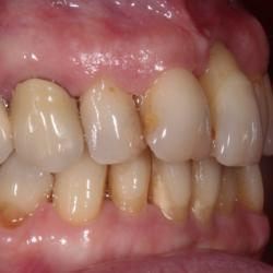 Fortgeschriitene Parodontose freiliegende Zahnhälse