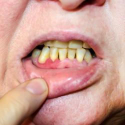 Patient mit Zahnfleischrückgang / parodontale Rezession