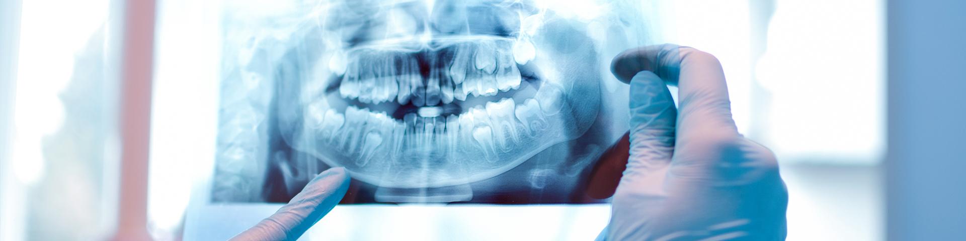 Röntgenaufnahme Gebiss