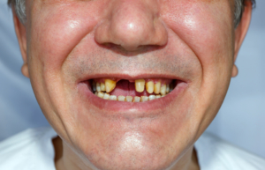 Mann ohne Vorderzähne