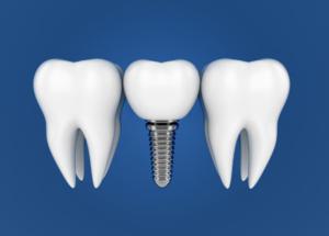 Periimplantitis ist Parodontitis am Implantat