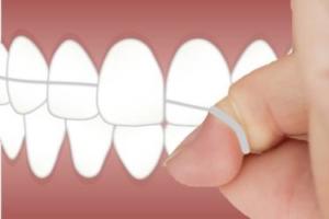 Anwendung Zahnseide