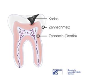 Lernt man in der Zahnputzschule: Aufbau eines Zahns