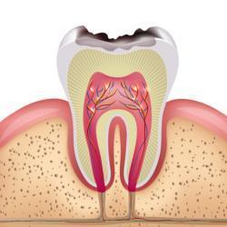 Bei der Kariesrisikobestimmung werden die Zähne auf aktuellen Karies untersucht