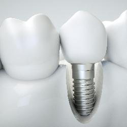 Im Zuge einer Komplettsanierung können auch Implantate fällig werden.