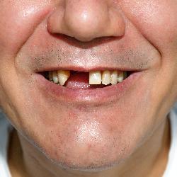 Komplettsanierung nötig? Lächeln mit großer Zahnlücke vorne.