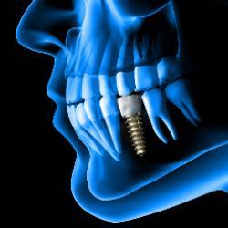 3D-Röntgen zur Vorbereitung auf die Implantation