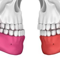 Überbiss und Unterbiss sind zwei Möglichkeiten der Zahnfehlstellungen
