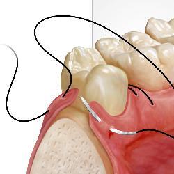 Rezessionsdeckung bei Zahnfleischrückgang