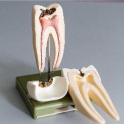 Zahnmodell Wurzelspitzen