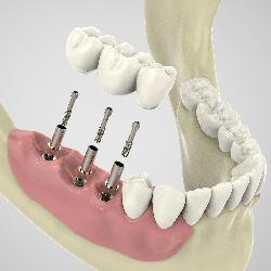 Implantate 3D-geführte Implantation