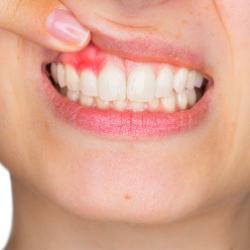 Zahnfleischentzündung Periimplantitis