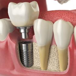 Implantat neben natürlichen Zähnen im Querschnitt