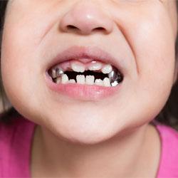 Zahnkronen für Kinder