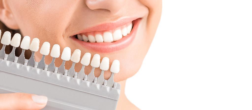 Ästhetische Zahnmedizin Veneers Bleaching