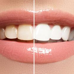 Bleaching Farbunterschied Zähne
