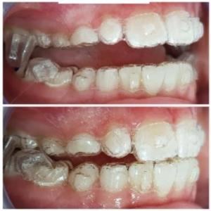 Invisalign First Schiene im Mund eines Kindes
